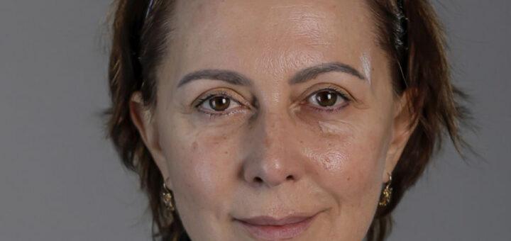 """Estado de Maria João é muito grave e atriz pode estar em """"morte cerebral"""""""