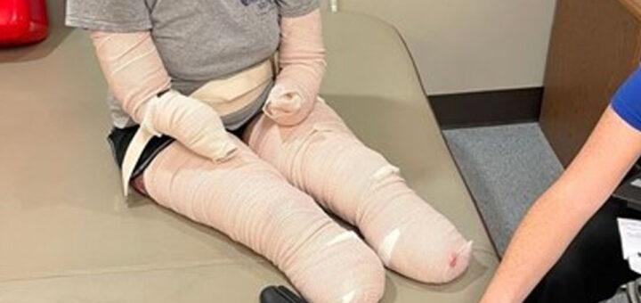 Mãe de três filhos perde braços e pernas devido à Covid-19